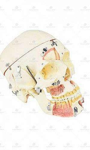 Peças de anatomia em resina